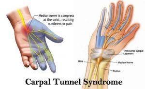 carpel-tunnel-treatment-prahran-chiropractic